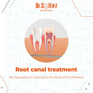 root canal treatment cost